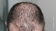 Männerkopf mit Haarausfall