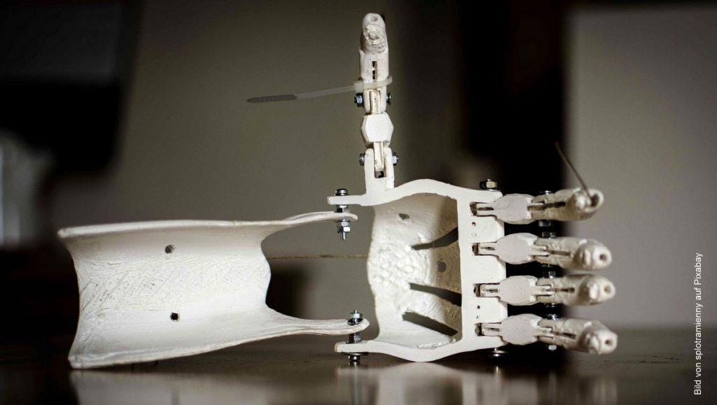 Handprothese, die im 3D Druck hergestellt wurde